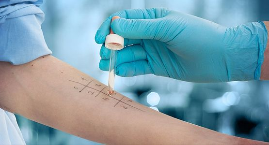 an allergy test being performed on the arm